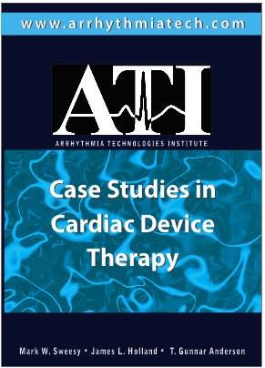 cardiac case study physical therapy Evidence-based practice the physical therapy profession recognizes the use of evidence-based practice (ebp) as central to providing high-quality care and decreasing unwarranted variation in practice.
